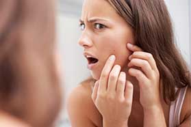 Acne Treatment in ,