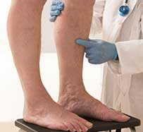 Deep Vein Thrombosis Treatment in Wichita Falls, TX