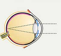 Blepharospasm (Eye Twitch) Treatment in Des Plaines, IL