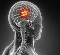 Brain Tumors in Clifton, NJ