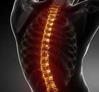 Minimally-Invasive Spine Surgery in Warren, NJ