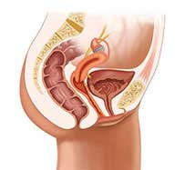 Pelvic Organ Prolapse Treatment in Hurst, TX