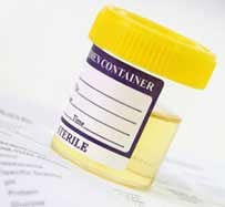 Urinalysis Testing Center in Cambridge, OH