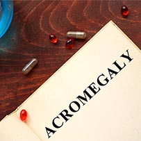 Acromegaly Treatment Clifton | Acromegaly Specialist
