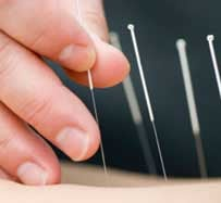 Acupuncture for Weight Loss in Hurst, TX