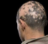 Alopecia Treatment | Hurst, TX