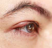Blepharitis Treatment | Des Plaines, IL