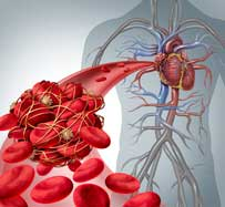 Blood Clot Treatments in Wichita Falls, TX