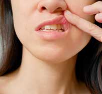 Canker Sore Treatment | Clifton, NJ