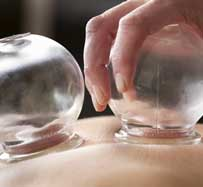 Cupping Therapy Massage in Seattle, WA
