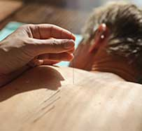 Dry Needling Therapy in Sherman Oaks, CA