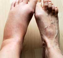 Edema Treatment in Cambridge, OH