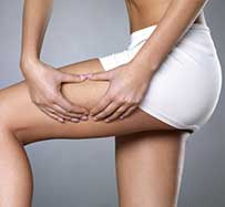 Extracorporeal Shock Wave Cellulite Treatment in Fredericksburg, VA