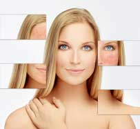 IPL Treatment for Rosacea | Clifton, NJ