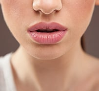 Lip Augmentation Clifton │ Lip Fillers