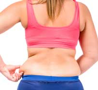 Excess Fat Treatment in Dallas, TX