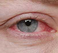 Pink Eye Treatment in Hurst, TX