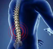 Scoliosis Treatment in Hurst, TX