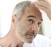 Stem Cell Hair Restoration in Clifton, NJ